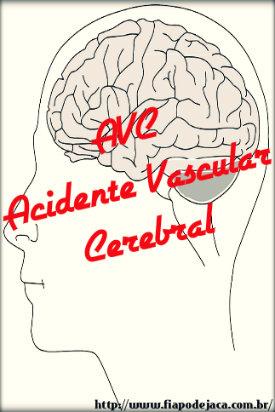 AVC: acidente vascular cerebral