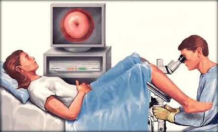 Colposcopia: exame, procedimentos, cuidados e preço.