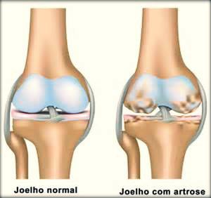 Artrose: causas, sintomas, tratamento e prevenção.
