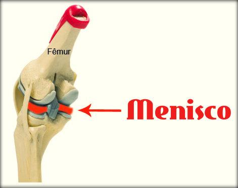 Lesões no menisco: causas, sintomas, tipos e tratamento.