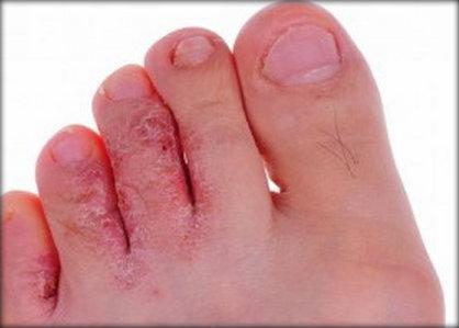 Doenças entre os dedos dos pés