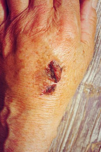 Queimaduras deixam cicatrizes?