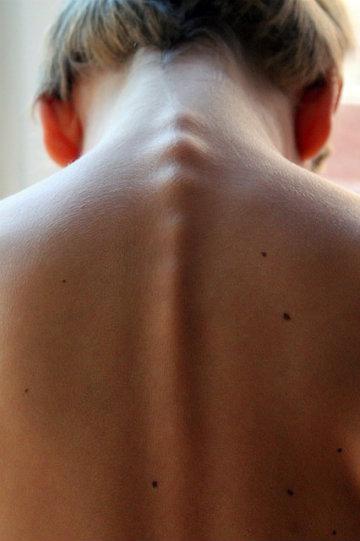 Dores nas costas: dicas para evitar esse transtorno